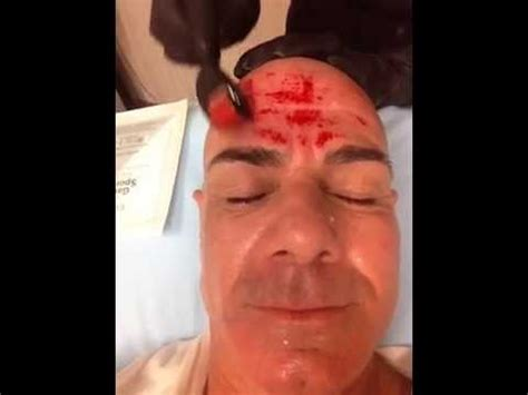 Derma Roller REAL RESULTS on a MAN - YouTube
