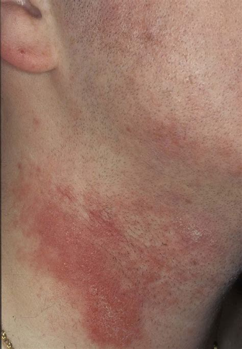Could You Show Some Images of Skin Rashes